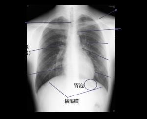 胸部画像 名称あり